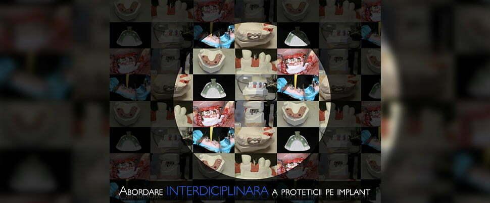 Abordare interdisciplinara a proteticii pe implant Partea II