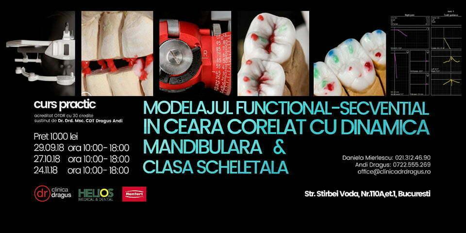 [:ro]Modelajul functional-secvential in ceara corelat cu dinamica mandibulara & clasa scheletala[:]
