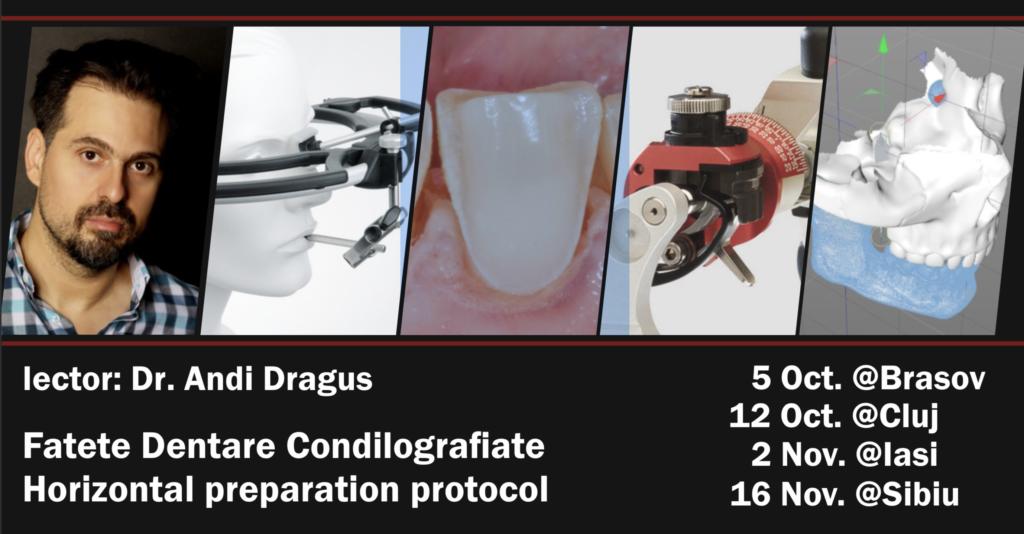 Fatete Dentare Condilografiate, Horizontal Preparation Protocol (HPP)